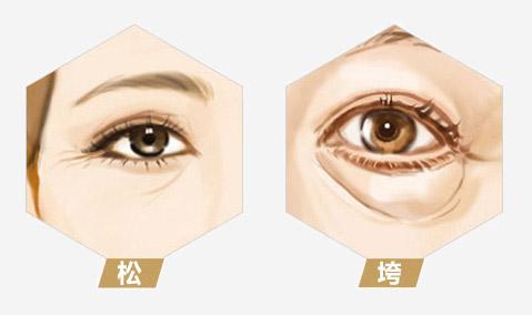 眼部衰老整形